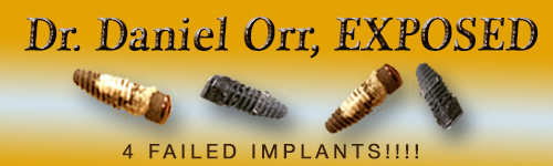 Dr. Daniel Orr, DDS Las Vegas NV Exposed, Unofficial Site by Steve Barket Failed Implants